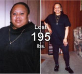 Donna - lost 195 lbs!*